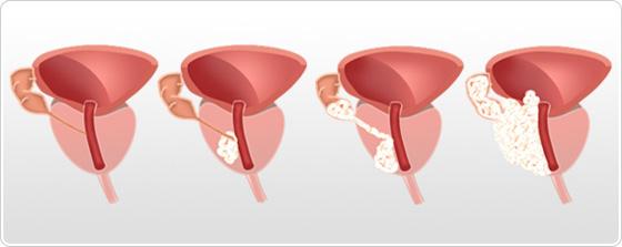 stades cancer de la prostate