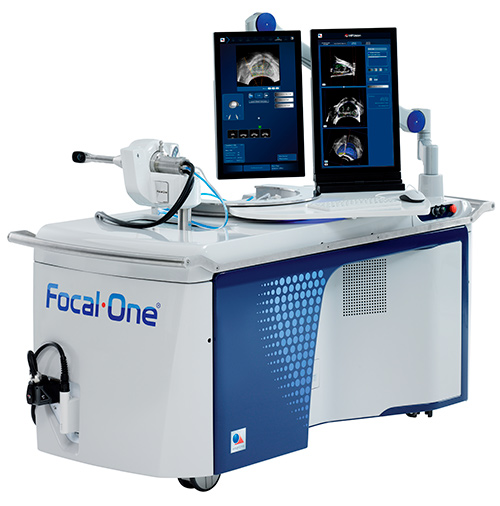 Focal One - Traitement HIFU